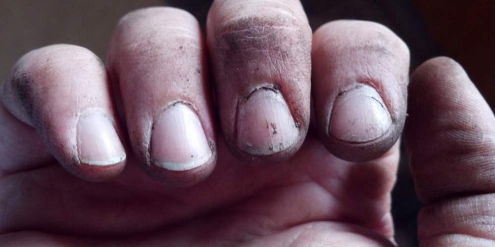 Onverzorgde nagels